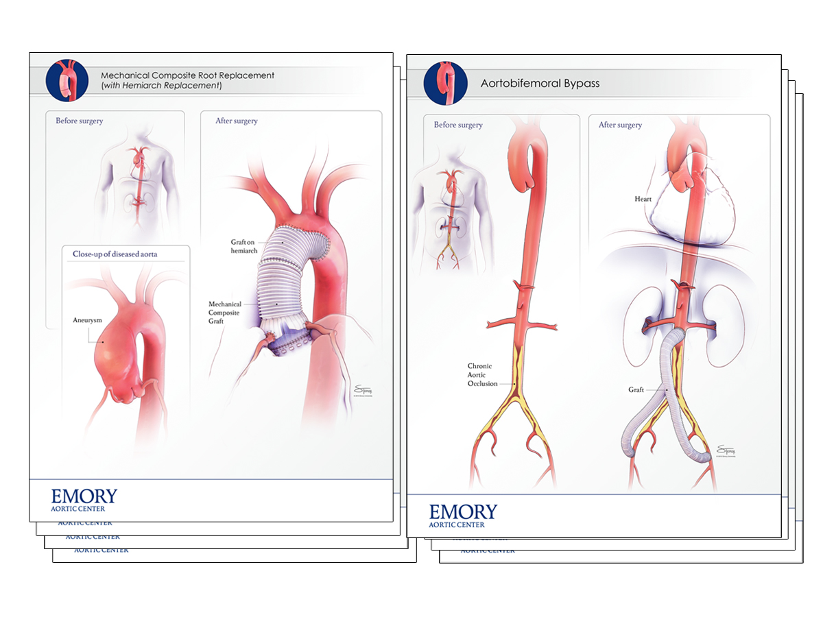 Vme Gallery Emory Aortic Center